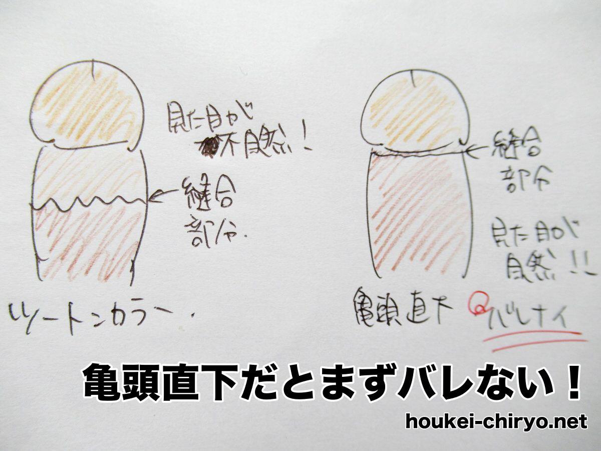 亀頭直下とツートンカラーの違い:包茎手術
